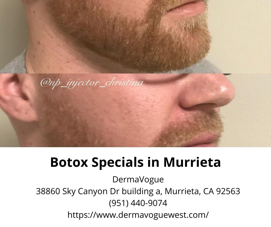 botox specials in murrieta